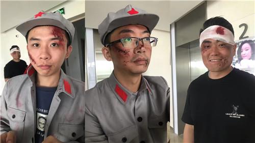 南京特效化妆师,特效妆 老年妆,特效妆 伤疤特效,流血特效 影视剧组 舞台化妆特效 流血 伤疤